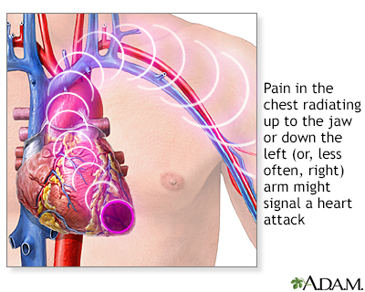 heart attack symptoms in men. Heart attack symptoms