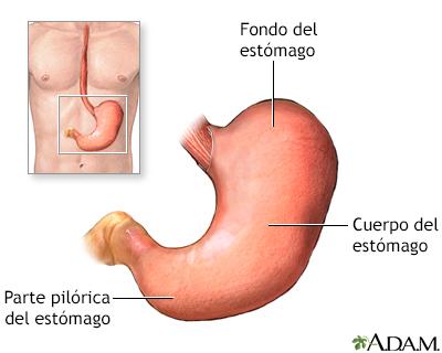 cancer gastrico gastrectomia: